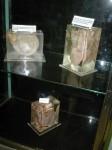 Die Originalherzen der ersten Herztransplantation